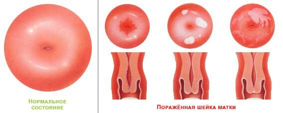 Лечение эрозии шейки матки в Великом Новгороде