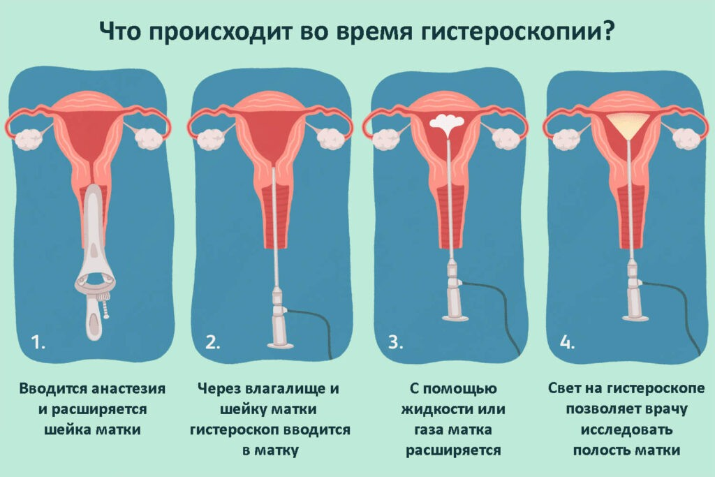 Что такое гистероскопия матки и зачем её проводят?