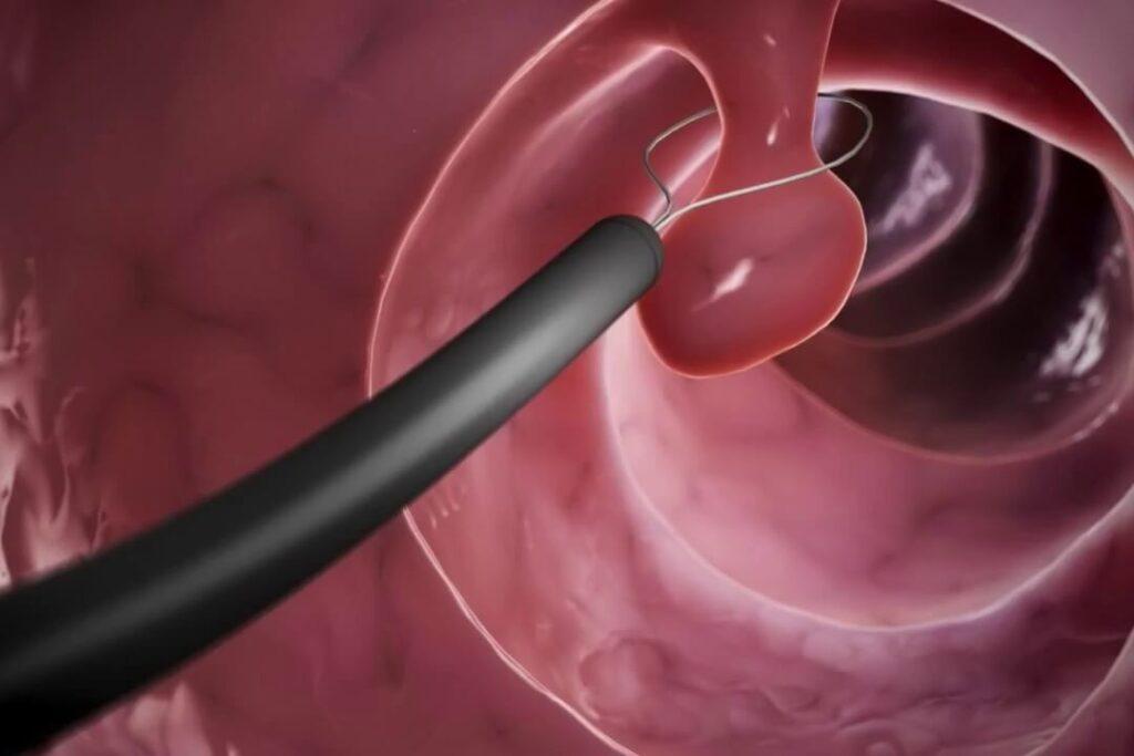 Гистерорезектоскопия: показания, лечение, реабилитация
